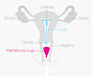 A period cup can be used with an iud